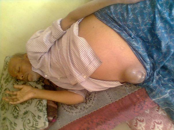 Help Gangadhar Undergo Liver Surgery