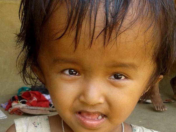 Help 4 Year Old Reshmi Fight Hydrocephalus