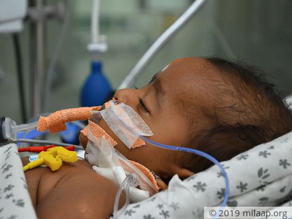 Help 5-month-old Who Had Seizures And Is The ICU With Brain Fever