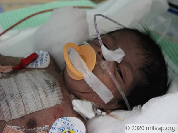 Baby of Lavanya needs your help to survive