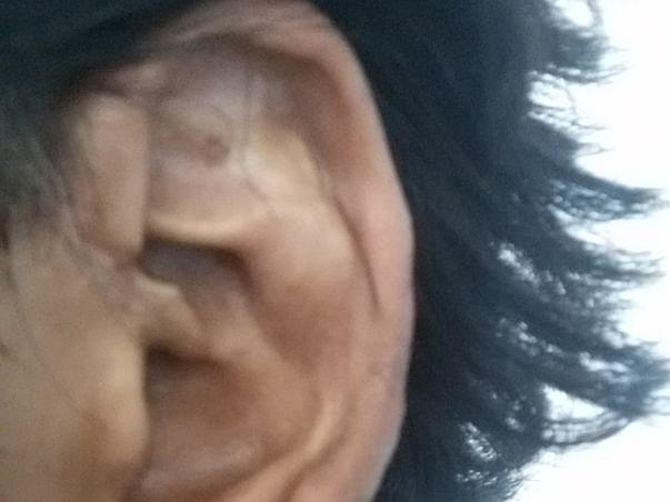 Help Mohd for Ear surgery