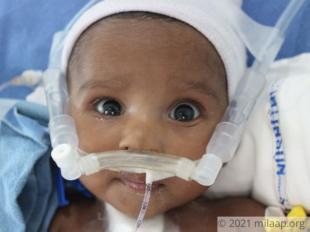 Baby of Srinivas Reneeds your help to survive