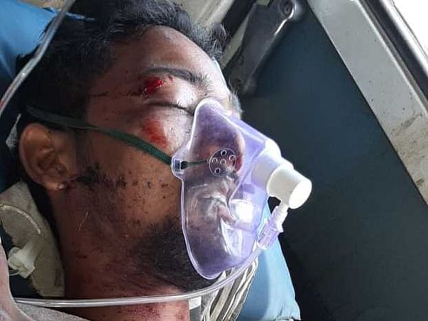 Fundraising for Abdul khader, critically injured in an accident