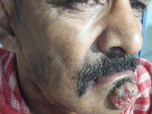 Help Sudhir Fight Cancer