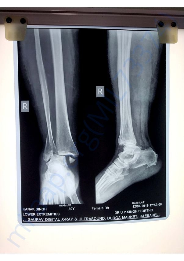 X-Ray Report - Bimalleolar fracture in right ankle