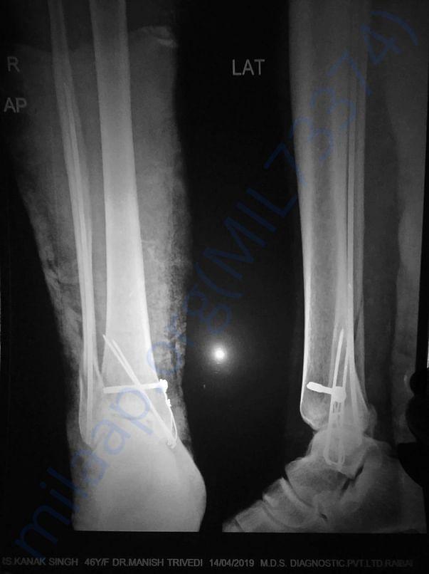 CRIF Square Nailing of fibula bone & TBW of middle malleolus.