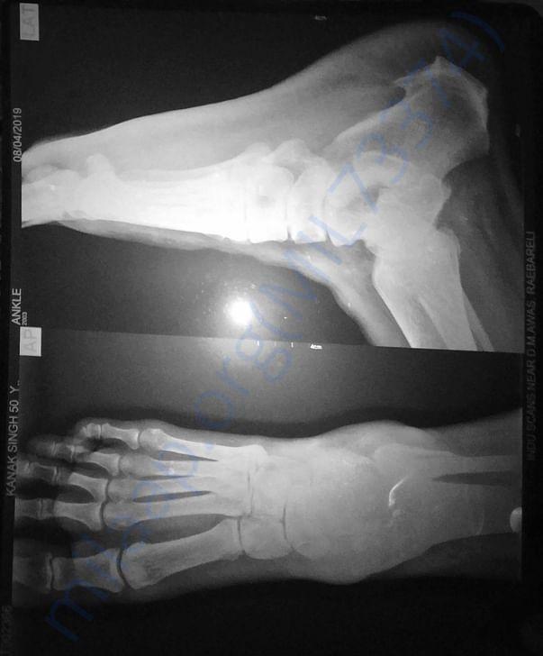 Misleading X-ray