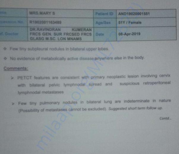 PT CT SACN 2