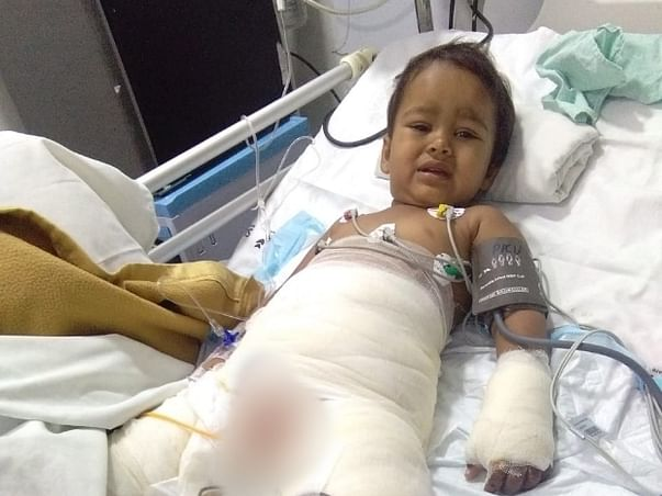 Help 4 Year Old Veda Recover From Burn Injuries