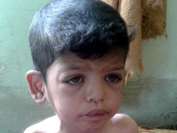 Help War Torn Baby Yunus Undergo A Life Saving Heart Surgery