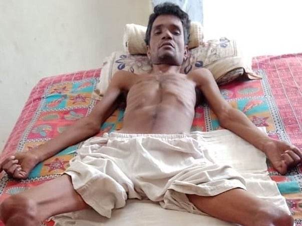 Help Sanwar Mal Kumawat Suffering From Spinal Cord Disease