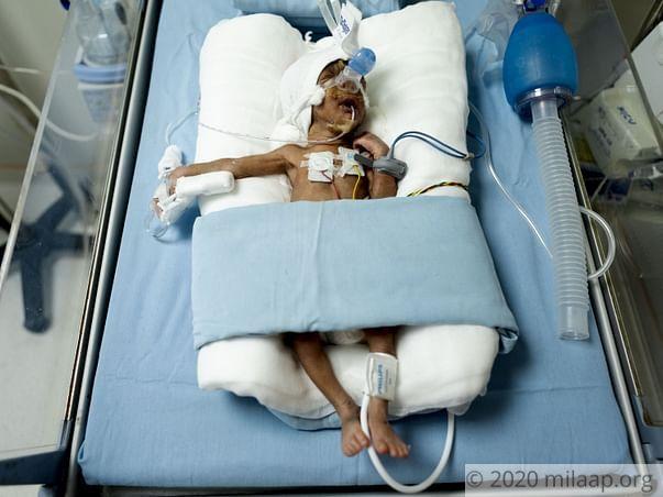 Help Jyothi's Premature Twins