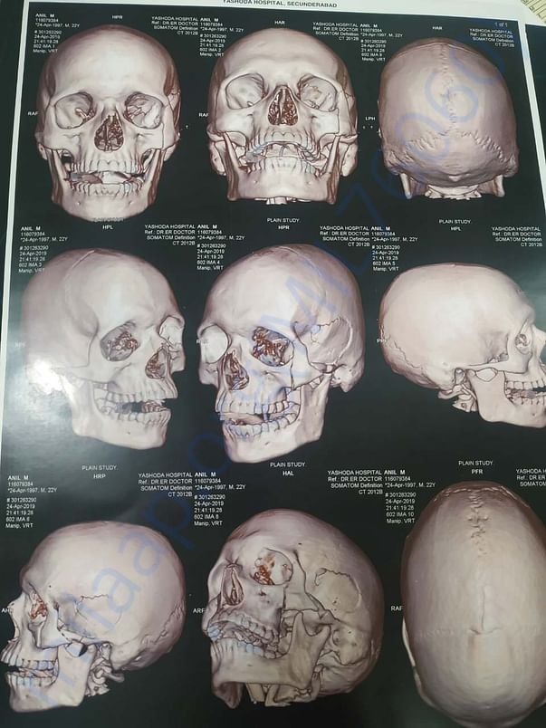 MRI scan reports- Scull broken 3 areas