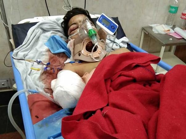 Class 9 Boy Lost His Hands And Leg After A Train Ran Over Him