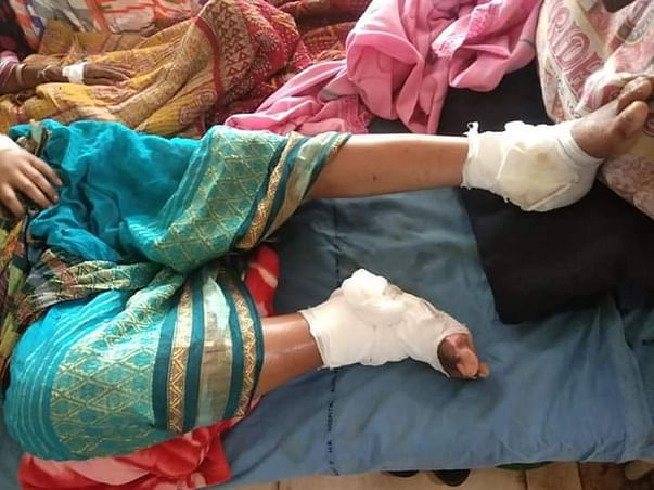 Help Minu For A Major Operation In Both Her Leg