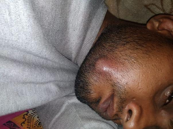 Help Prabhakar Fight Mouth Cancer
