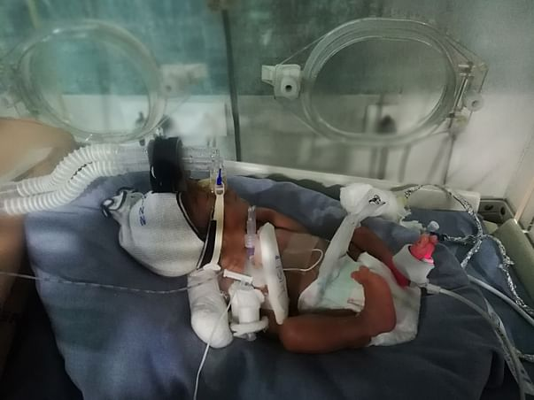 A Premature Baby Fighting A Battle To Live