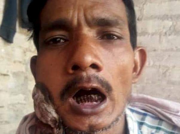 Help Govind Fight Cheek Cancer