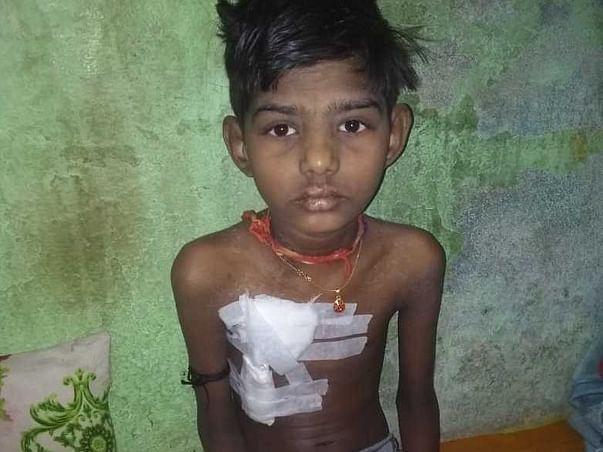 Help Gaurav undergo Kidney Transplant