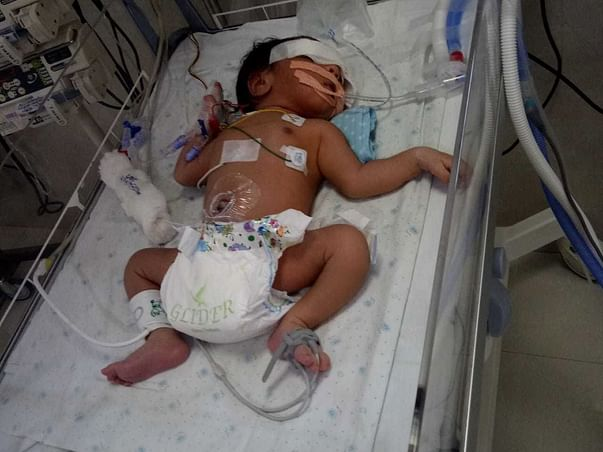 Help This Baby From Aspiration Syndrome