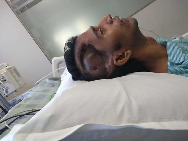 Help Gopal Fight Back To Life After A Deadly Brain Stroke