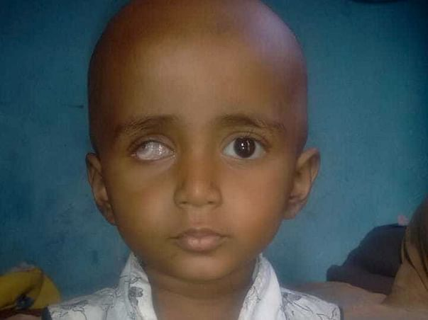 Help Divya Fight Eye Cancer