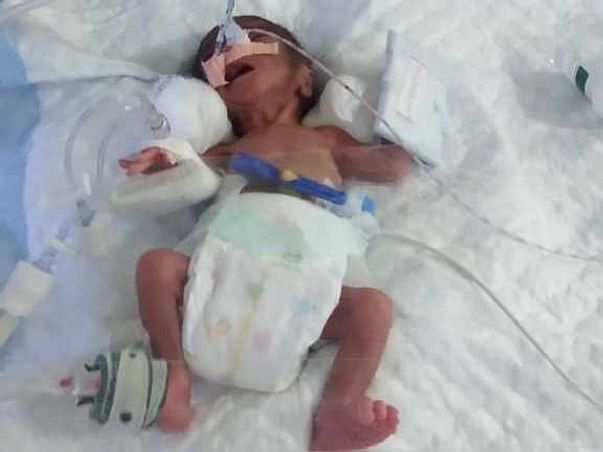 Help to save a premature born baby of daily wage labour