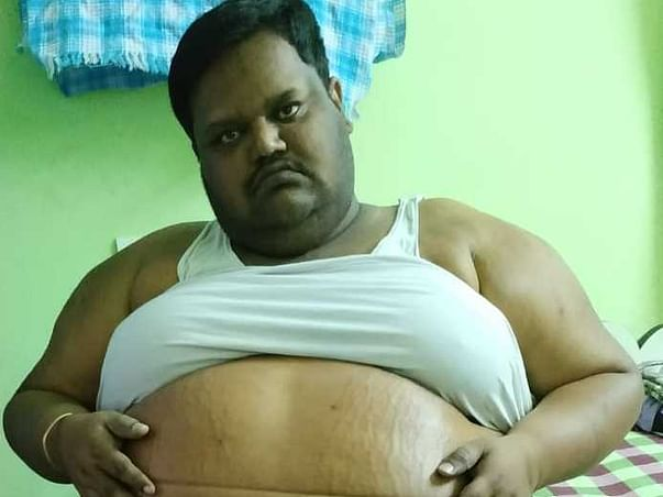 Help Naveen Goud With Morbid Obesity Stomach Filled With Water
