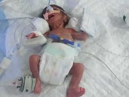 Help Us Save Our Premature Baby