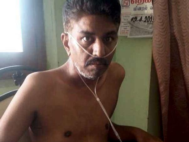 Help Me Undergo A Lung Transplant