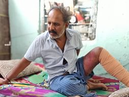 After a Bus Ran Over Man's Leg, His Family Was Brought To The Streets