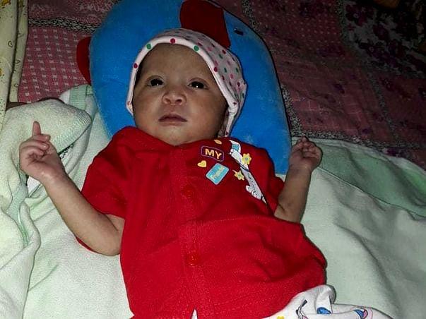 Help My Newborn Baby Undergo Heart Surgery
