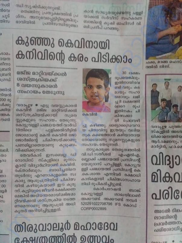 Article about Kevins's Surgery in malayalam daily newspaper - 1