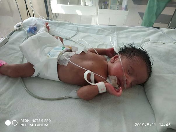 Help Premature Daughter Recover