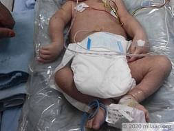 Help Baby Of Swetha Recover