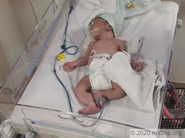 Baby of Asha needs your help to survive