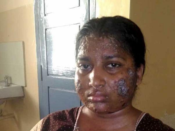 "Help Ms.Pavithra fight a rare Skin disorder ""Pemphigus Vulgaris"""