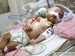 Baby Sneha needs your help to undergo her treatment