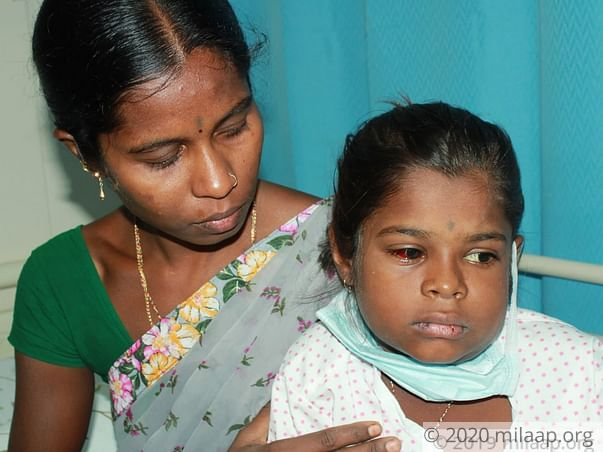 Baby Govindamma needs your help to undergo treatment