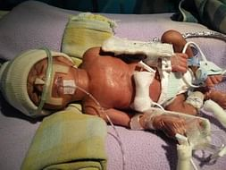 Help My 13 Day Old Baby In NICU