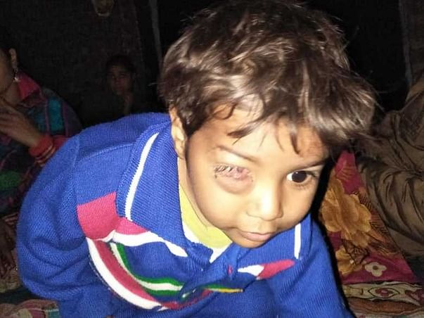 Support 2 Year Old Mohd. Saad Fighting With Cell Tumor On His Eye