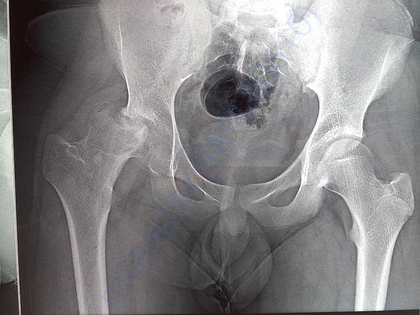 Latest X-ray