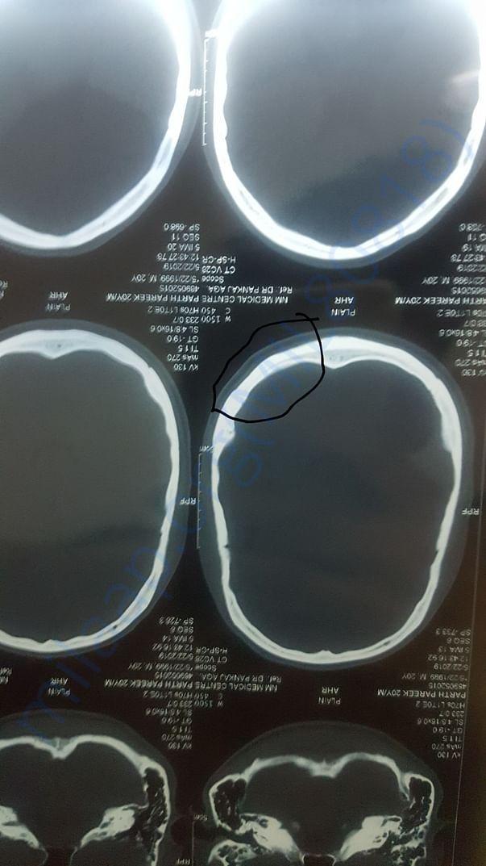 CT scan of injured part