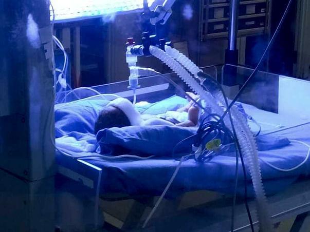 Help my premature baby