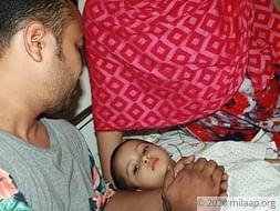 Help Baby Yasira Rahman Fight Medullablastoma