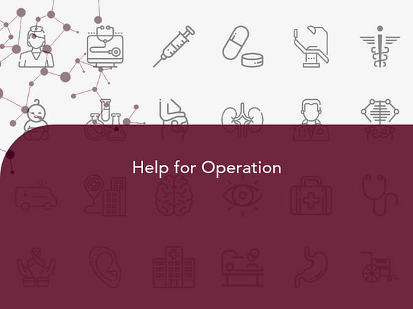 Help for Operation