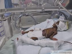 Help Baby of Pushpalatha Recover