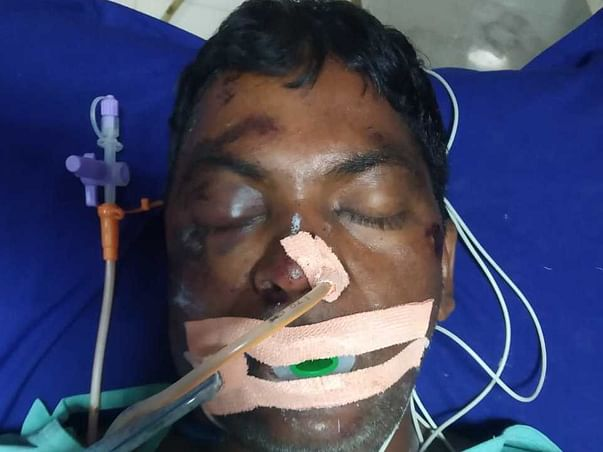 Help Shiva Recover from Severe Injuries