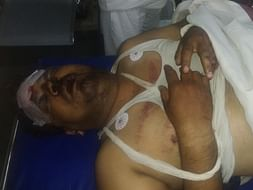 Help Manoj to survive Road Accident