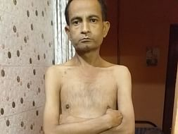 Help Saurabh For Dialysis And Kidney Transplant mother not supporting
